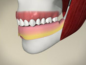 Implant (bar-supported denture)